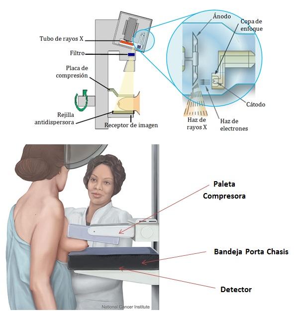 Instrumentacion y Equipos en Diagnostico por Imagen: Mamografia / Mamografia  Digital