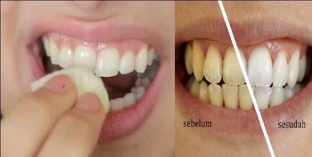Cara Mudah Memutihkan Gigi Di Rumah Hanya Dalam 2 Menit Dengan