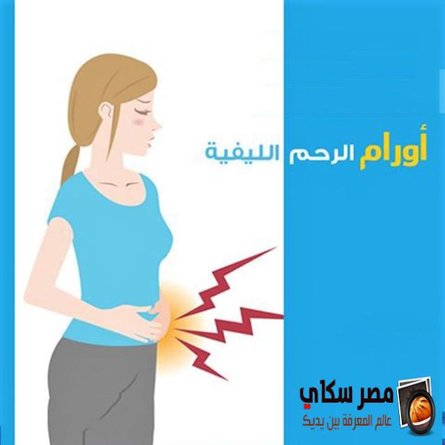 أسباب الورم الليفي فى الرحم وأشكاله Uterine fibroids