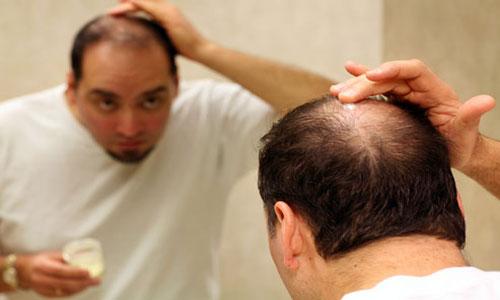 Cara Mengatasi Kebotakan Rambut Pria