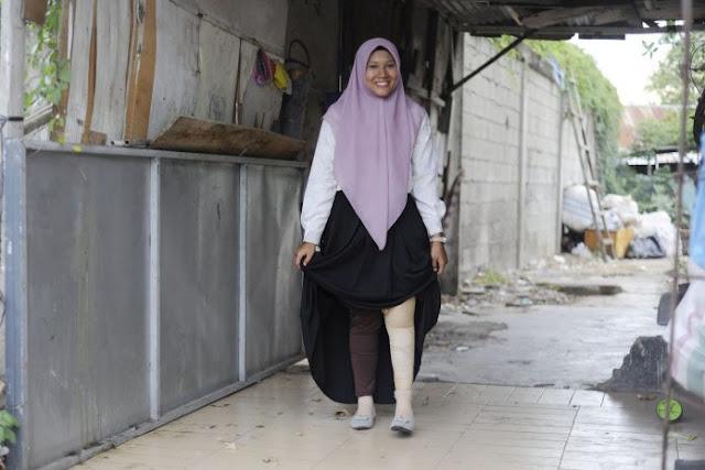 Kisah Delissa Fitri Korban Selamat Tsunami Aceh, Bertahan dengan Satu Kaki