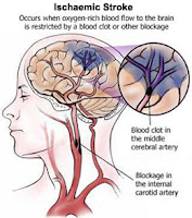 Symptoms of Ischemic Stroke