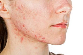 Good news for acne: S FDA approves Ortho Dermatologics' Altreno lotion to treat acne