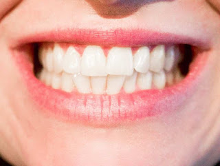 How to get shiny teeth naturally?