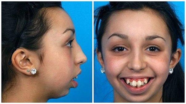 mandibula y dentadura