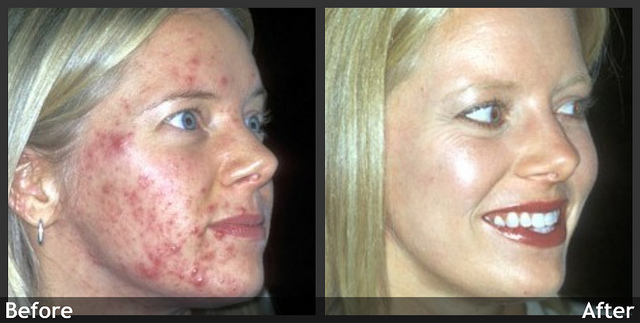 Colloidal Silver Acne Scars Herbal Treatment For On Face How To Get Rid Of Deep Fast Pdf Review