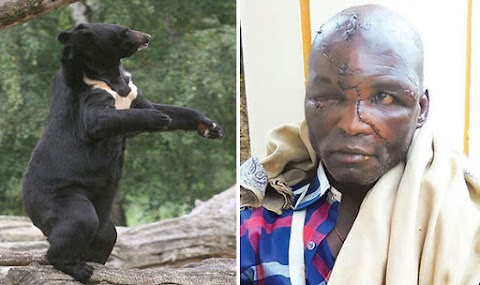 Lucky man miraculously survives 3 hours savage fight with bear (graphic photos)