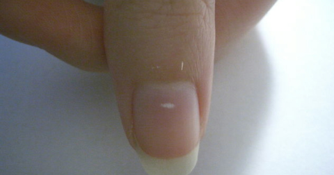 white spots on fingernails indicate calcium deficiency