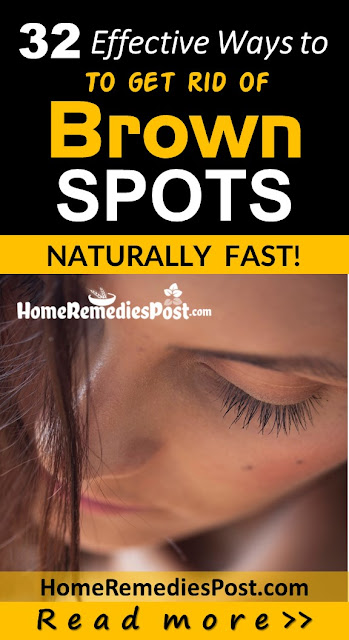 how to get rid of brown skin spots, how to get rid of dark spots fast, home remedies for brown skin spots, how to treat age spots fast, clear dark spots overnight fast, anti-aging remedies,