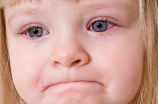 cara mengatasi mata merah pada anak