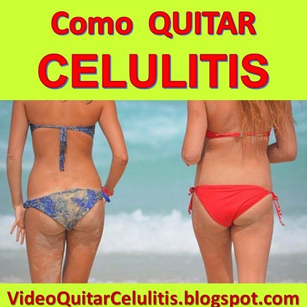 como se quita la celulitis de los muslos