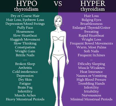 hipertiroidism simptome