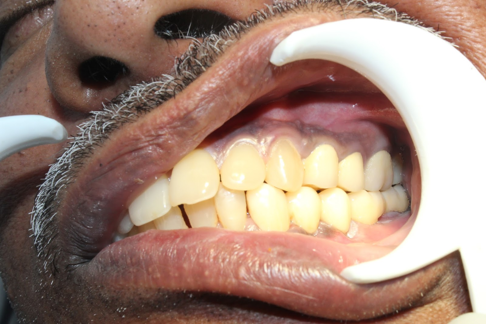 Zirconium Bridges For Teeth Replacement With Dental Implants