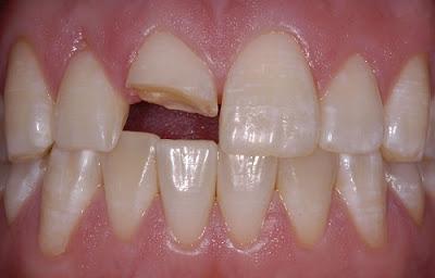 trám răng bị gãy có được không -1