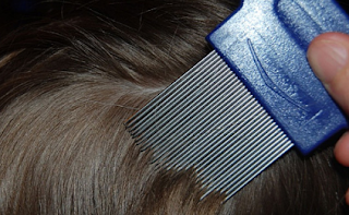 Cara Ampuh Membasmi Kutu Rambut