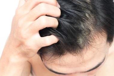 Rambut Gatal