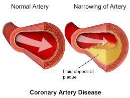 علاج ارتفاع الكوليسترول في الدم