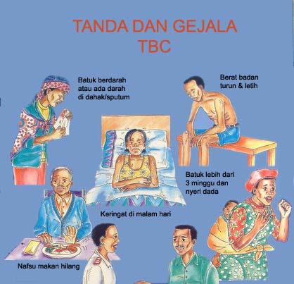 Penyakit TBC Ancam Kesehatan Masyarakat, Hindari Dengan Kontak Langsung Dengan Penderita TBC