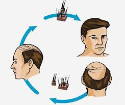 Hair,Replacement Systems,new