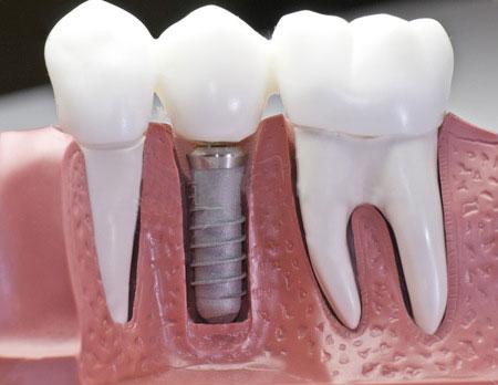 İmplant Diş Nedir? Benim İmplant Diş Deneyimim