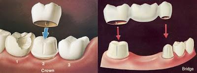cầu răng sứ và bọc răng sứ