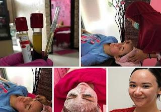 Perawatan kecantikan metode PRP