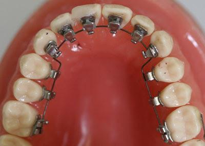 Ortodoncia Infantil Corrigiendo Su Dentadura A Tiempo