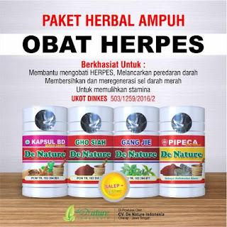 Penyakit Herpes Simplex (Cara Mengobati, Gejala, & Penyebabnya)