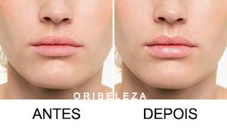 Bálsamo de Volume para Lábios Lip Spa The ONE - Antes e Depois