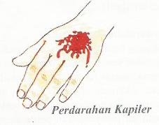 Perdarahan Kapiler