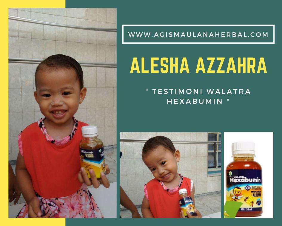 Vitamin Penambah Nafsu Makan Anak Di Apotik