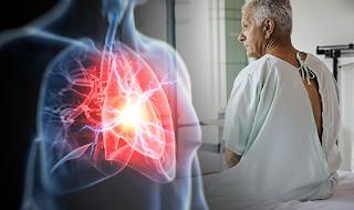 Καρδιακή προσβολή: Το σύμπτωμα-κλειδί που ΔΕΝ είναι ο πόνος στο στήθos