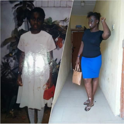 "Photos: ""My own WCW"" - Brave burn survivor who was attacked with acid by uncle"