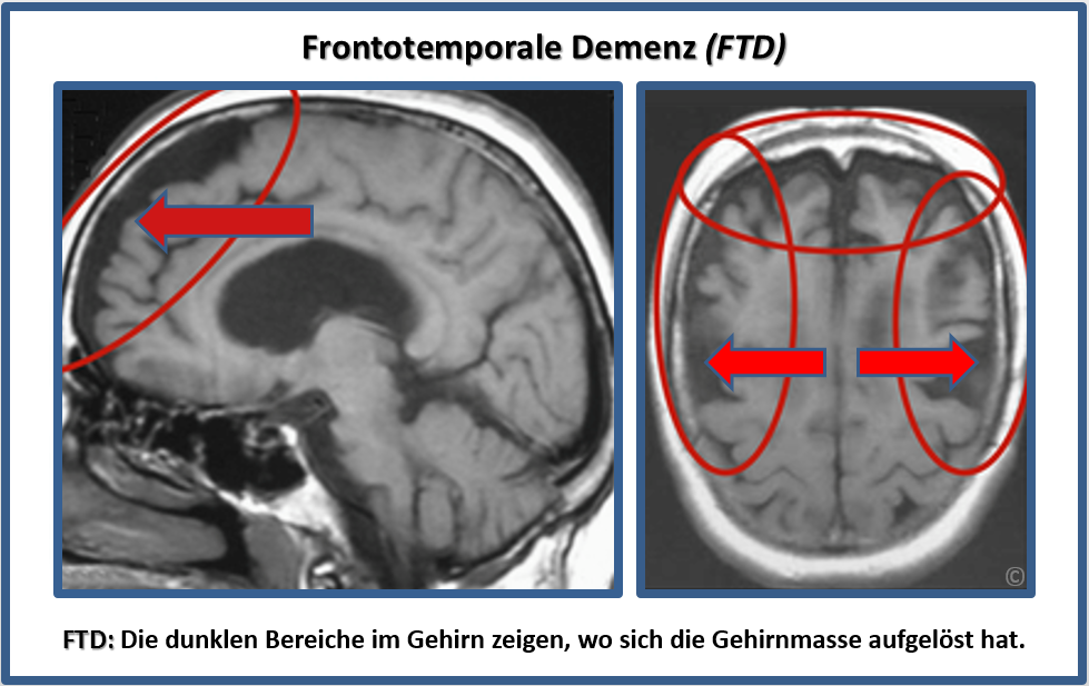 verhaltensbetonte frontotemporale demenz dem