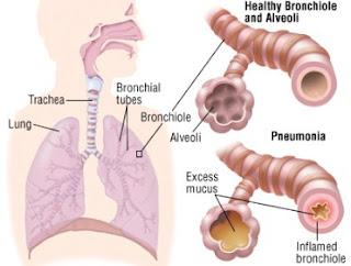 kencur untuk obat batuk bayi, obat batuk kencur dan jahe, khasiat kencur dicampur madu, kencur obat batuk kering, khasiat kencur untuk suara, khasiat kencur untuk batuk, efek samping kencur pada anak