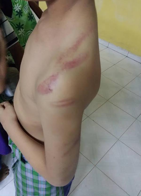 Inilah PUNCA SEBENAR Pelajar Tahfiz Dipukul Sampai Terkoyak Kulit Kepala Jadi Viral