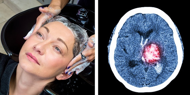 Woman Suffers Stroke After Getting Hair Shampooed At Salon