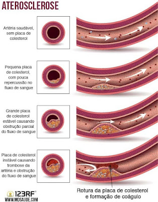 4c128f1dd Exossomas e Ataque Cardíaco | Saúde e a química da célula humana