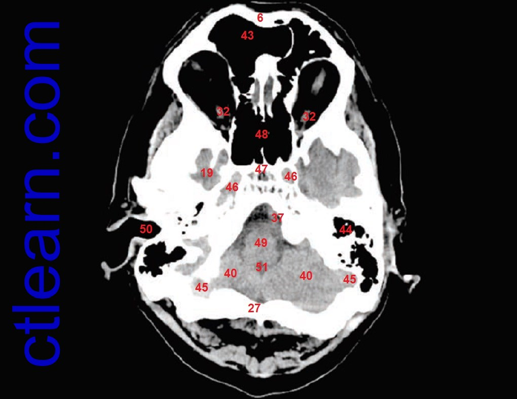 Learn CT Scan: Anatomy CT Axial Brain