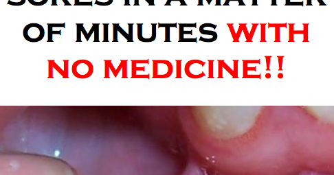 how to get rid of canker sores on your tongue