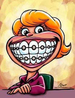 Hukum Pasang Kawat Gigi dalam Islam