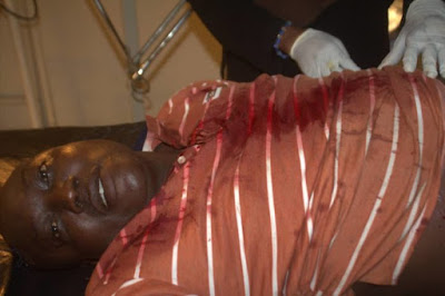 Lagos Politician Escapes Death After Machete Attack By Political Thugs (Photo)