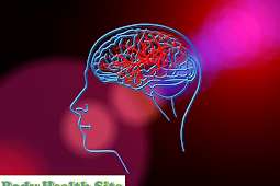 Non Hemorrhagic Stroke, The Type of Stroke Most Frequently Occurred