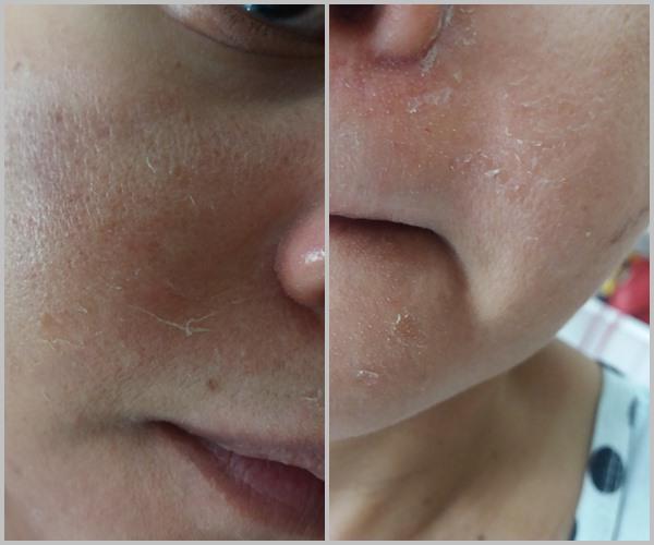 Diário de um peeling: Descamação da pele.