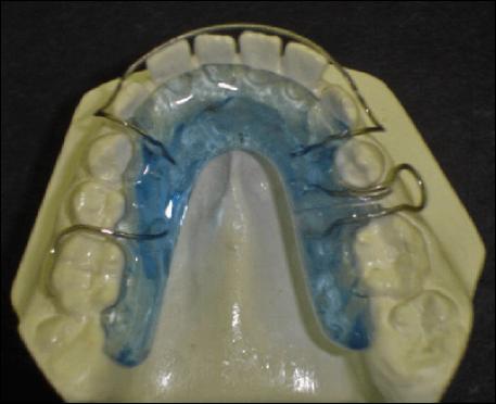 Open Lab UPC Ortodoncia 2012  RECUPERADOR DE ESPACIO