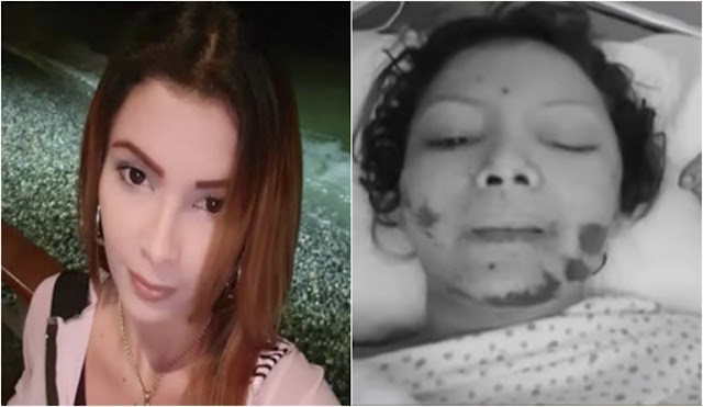 Venezolana se lanza de un tercer piso en Perú tras ser violada y golpeada