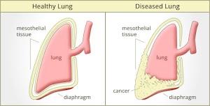 Diagnosis Mesothelioma Peritoneal