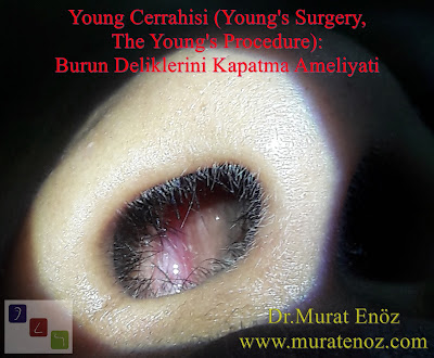 Young Cerrahisi, Young  Operasyonu, Young Ameliyatı, Young Prosedürü, Young's Operation, Young's Surgery, The Young's Procedure, Boş Burun Sendromu, hatalı burun eti ameliyatı, Modifiye Young Cerrahisi, Modifiye Young  Operasyonu, Atrofik Rinit Tedavisi