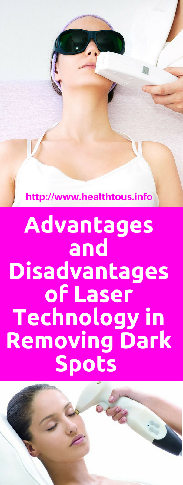 advantages and disadvantages of lasers A comparative analysis of the advantages and disadvantages of laser light and led light source 1 a comparative analysis of the advantages and disadvantages of laser light and led light source every technological advances and breakthroughs will change the competitive landscape of an industry fundamentally.