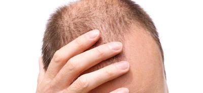 gresik24jam - kenali penyebab rambut rontok dan kebotakan